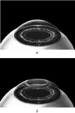 Восстановление зрения магнитами