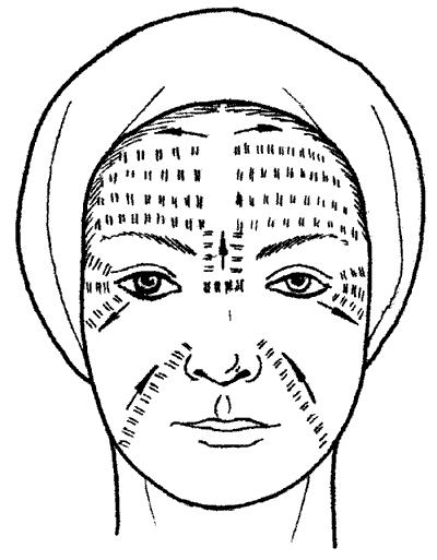 Схема пощипывания кожных